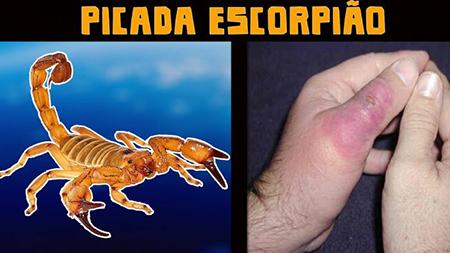 Você sabe como evitar escorpiões e como agir caso haja acidente?